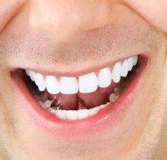 黄牙牙齿美白要多少钱