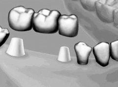 有牙根能镶牙吗