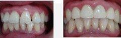 14岁女孩一颗前牙矫正行吗?